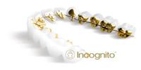 Incognito(インコグニト)